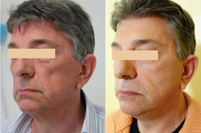 Resultaat huidverstrakking Ultraformer - man 1 behandeling