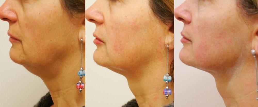 Resultaat hals Ultraformer huidverstrakking