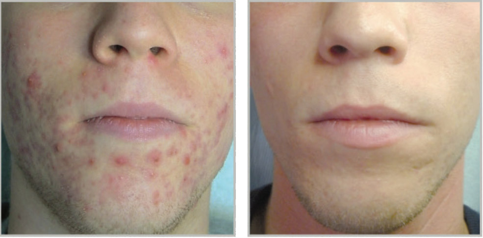 Acne behandelen dermatoloog