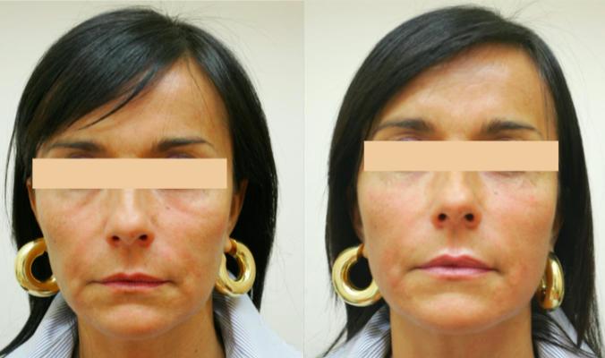 Ultraformer huidverstrakking vrouw