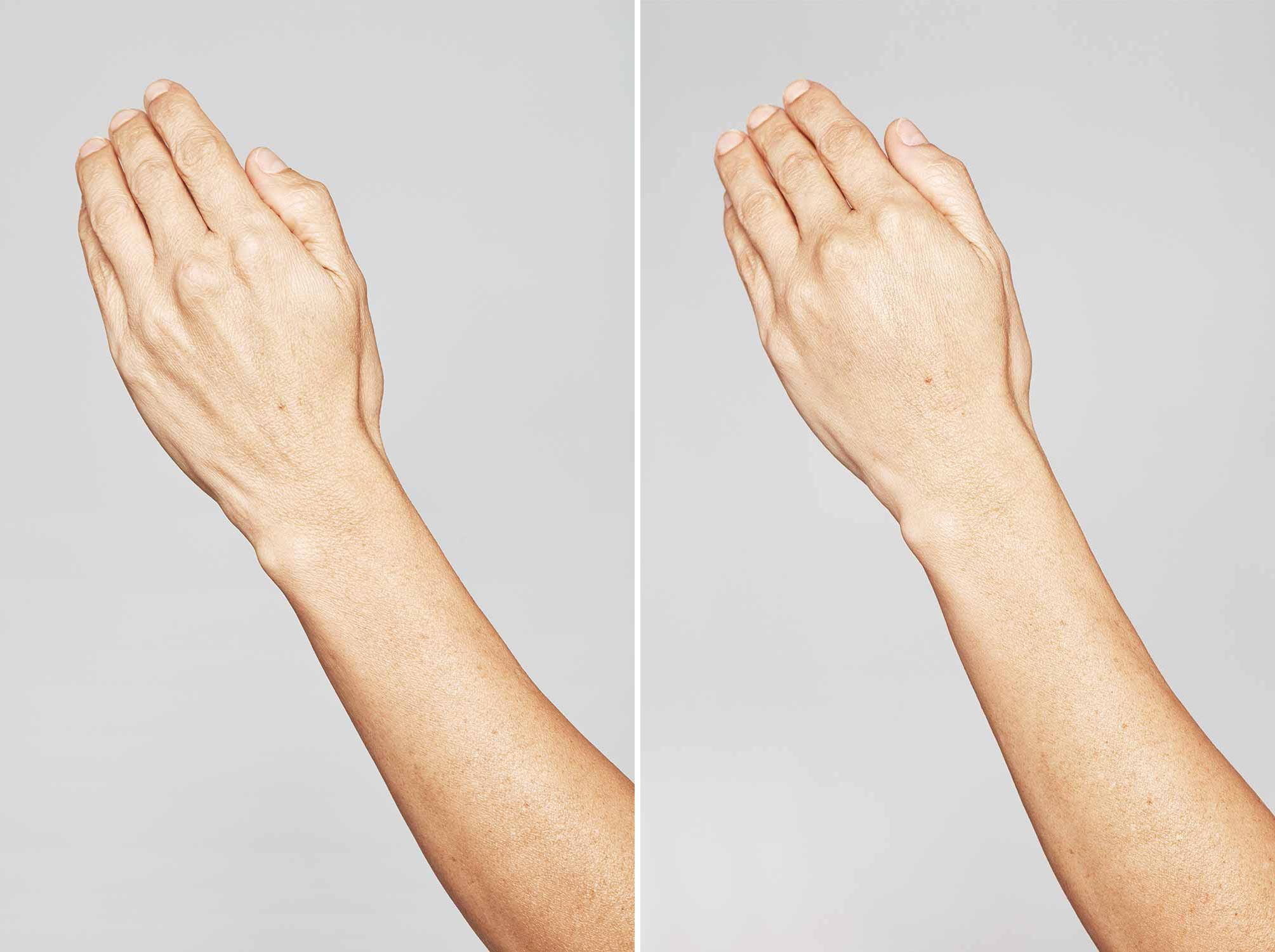 Mooie handen dankzij fillers